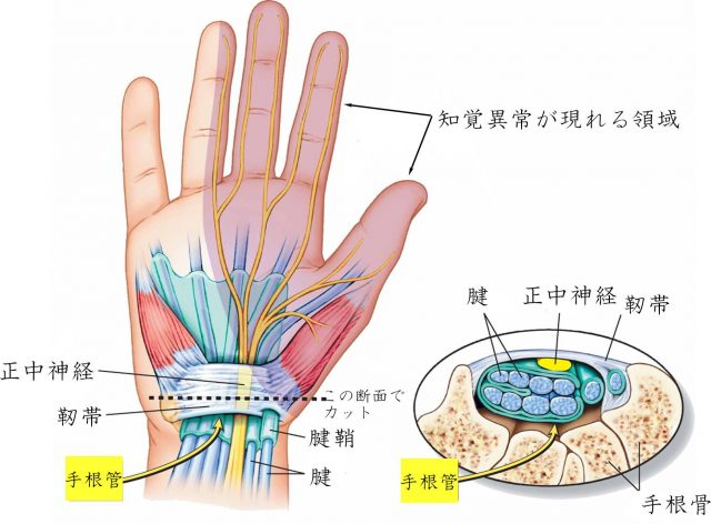 右図の骨と靭帯の間のトンネルが手根管です。この手根管の中で神経が圧迫されると痛み・しびれ運動障害が出ます